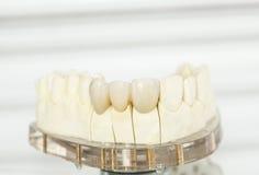 Ceramiczne stomatologiczne korony Zdjęcie Stock