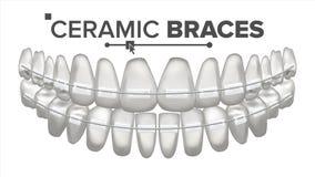 Ceramiczni brasy Wektorowi szczęka ludzkiej Dentysta, ortodonta plakata element 3D Realistyczna Odosobniona ilustracja Obraz Royalty Free
