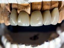 Ceramik tand Fotografering för Bildbyråer