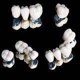 Ceramische geplaatste tanden Stock Afbeeldingen