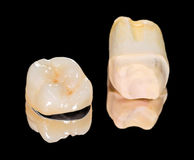 Ceramische kroon Stock Afbeelding