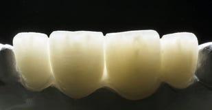 Ceramische kroon Royalty-vrije Stock Foto's