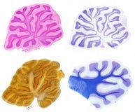 cerebellum Comparação de quatro métodos da mancha foto de stock