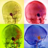 Cerebral aneurysm, angiogrpahy. Collage of 4 different angiographic projections in patient with cerebral aneurysm Stock Photography