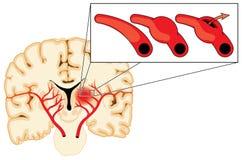 Cerebral aneurysm Royalty Free Stock Image