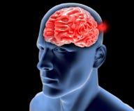 Cerebral aneurysm, brain head stock illustration