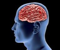 Free Cerebral Aneurysm, Brain Head Stock Image - 38284621