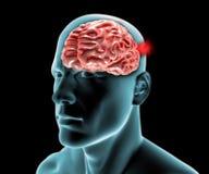 Cerebral aneurysm, brain head Stock Photography