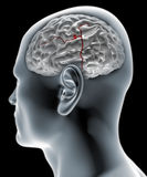 Cerebral aneurysm, brain head Stock Image