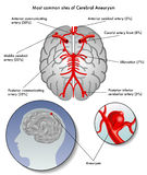 Cerebral aneurysm. Medical illustration of the most common sites of cerebral aneurysm Royalty Free Stock Photos