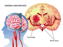 Cerebral hemorrhage Royalty Free Stock Photos