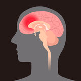 Cerebral hemorrhage, image illustration Stock Photos