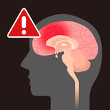 Cerebral hemorrhage, image illustration Stock Images