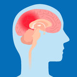 Cerebral hemorrhage, image illustration Royalty Free Stock Photography