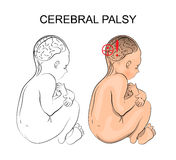 Cerebral palsy. neurology. Illustration of patient with cerebral palsy. Child Royalty Free Stock Photo