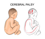 Cerebral palsy. neurology. Illustration of patient with cerebral palsy. Child Stock Photos