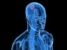 Cerebral tumor Royalty Free Stock Photo