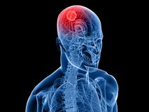Cerebral tumor Stock Photography