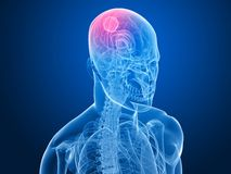 Cerebral tumor Stock Photos