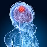 Cerebral tumor Stock Photo
