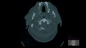 Cerebral venös blodstockning vektor illustrationer