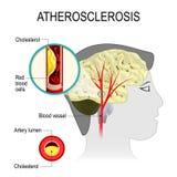 Cerebralna arteria z atherosclerosis Fotografia Stock