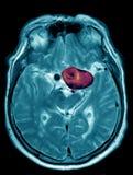 Cerebralny aneurysm, MRI zdjęcie stock
