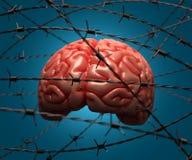 Cerebro arrestado Foto de archivo