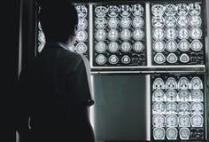 Cerebro de la demencia en MRI Fotografía de archivo