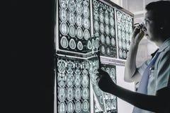 Cerebro de la demencia en MRI Fotos de archivo libres de regalías