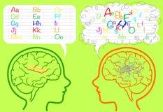 Cerebro de la dislexia Imágenes de archivo libres de regalías