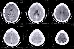 Cerebro de la exploración del Ct Fotografía de archivo libre de regalías