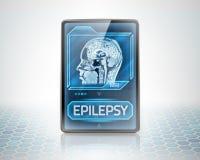Cerebro epiléptico Imagenes de archivo