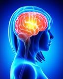 Cerebro femenino en radiografía azul Foto de archivo