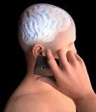 Cerebro, hombre con el teléfono celular, Brain Problems, causa del tumor, enfermedades degenerativas, ` s, cara de Parkinson del  Fotografía de archivo libre de regalías