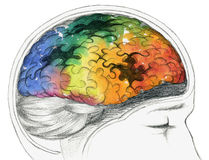 Cerebro humano enfermo Imágenes de archivo libres de regalías
