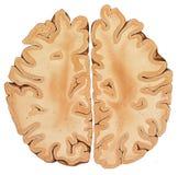 Cerebro - un corte transversal más alto de la región Imagen de archivo libre de regalías