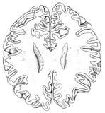 Cerebro - un corte transversal más bajo de la región Imagen de archivo libre de regalías