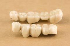 Cermet dental bridges royalty free stock images