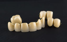 Free Cermet Tooth Crowns Stock Images - 88777504
