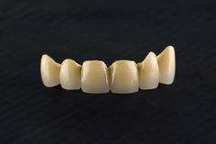 Cermet tooth crowns stock photos