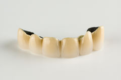 Cermet tooth crowns stock images
