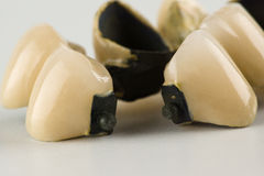 Cermet tooth crowns royalty free stock image