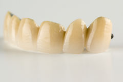 Cermet tooth crowns stock photo