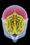 Cerveau Photos libres de droits