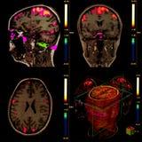 Cerveau fonctionnel de résonance magnétique Photographie stock