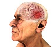 Cerveau, les maladies dégénératives, ` s, ` s d'Alzheimer de Parkinson Vieil homme illustration de vecteur