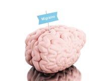 cervello 3d con un'emicrania di parola e dell'insegna illustrazione vettoriale