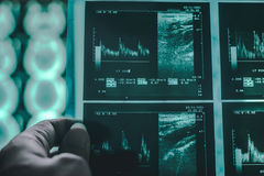 Cervello di demenza sul RMI Immagini Stock