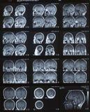 Cervello di MRI Fotografie Stock Libere da Diritti